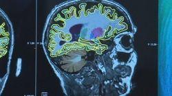 Alzheimer: étude sans précédent pour détecter les premiers