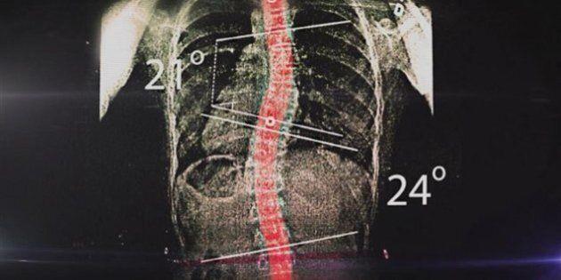 Scoliose: un médecin de Sainte-Justine a prescrit son invention, le SpineCor, malgré des