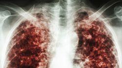 Le Canada doit continuer de soutenir TB