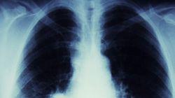 Le taux d'incidence du cancer du poumon en