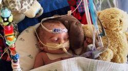 Facebook rejette une photo d'un bébé hospitalisé, jugée «trop