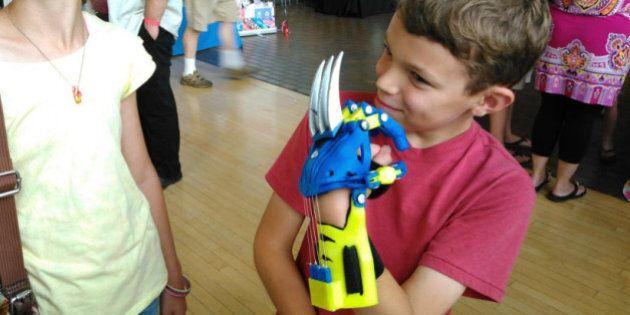 Une prothèse 3D équipée des griffes de Wolverine pour rendre de l'autonomie (et le sourire) à un