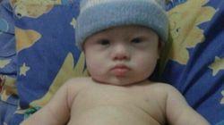 Un bébé trisomique abandonné à sa mère