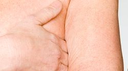 Cancer du sein: la désescalade