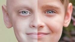 Voyez l'avant et après de Noah, 7 ans, qui a combattu le cancer