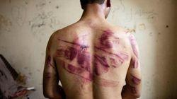 La torture a été «glorifiée» par la télévision, dénonce Amnesty