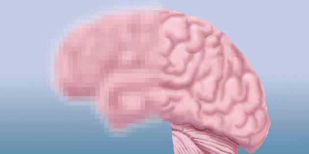 Les commotions cérébrales en chute