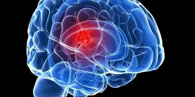 Tumeur cérébrale chez l'enfant: percée