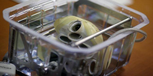 Coeur artificiel autonome: le malade ayant bénéficié de la première implantation est