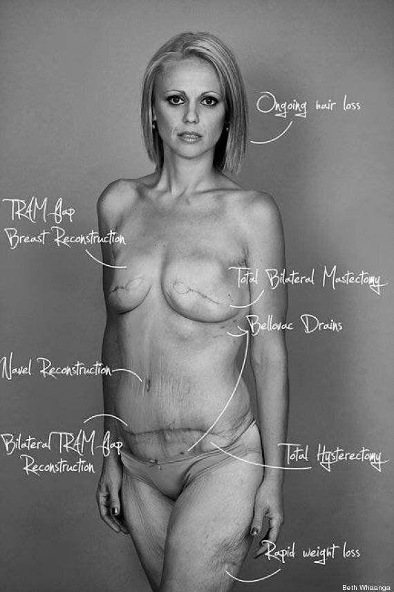Beth Whaanga expose son corps sur Facebook pour montrer les conséquences de son cancer du sein