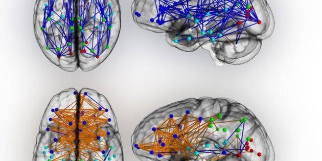 Hommes et femmes : des cerveaux «branchés»