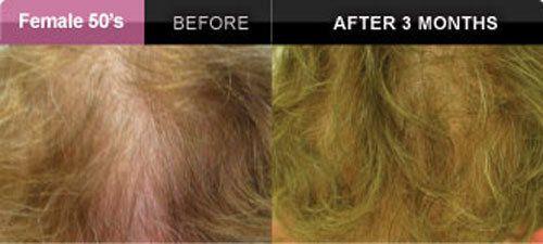 Vous perdez vos cheveux? ILLUMIWAVE à la