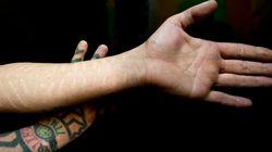 Les cicatrices plutôt que le tatouage ou le