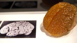Le cerveau d'Einstein partiellement
