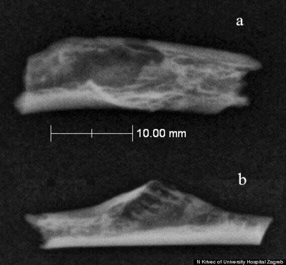 La plus vieille tumeur humaine découverte sur un homme de Néandertal