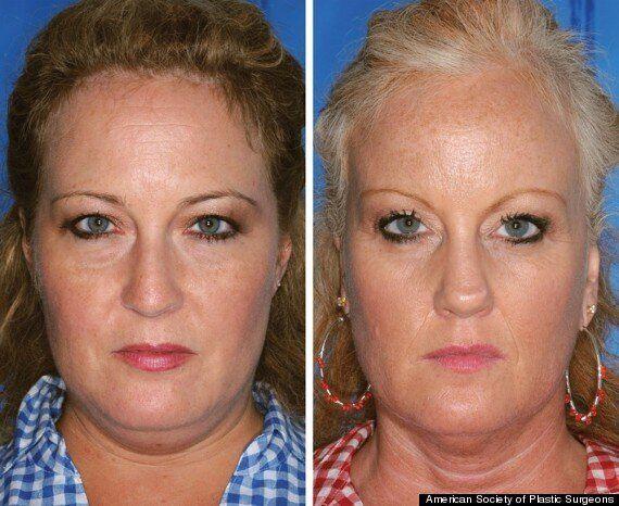 Vieillissement de la peau à cause du tabac: la différence sur des jumeaux
