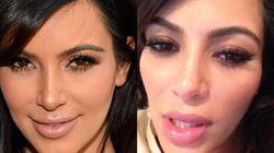 Kim Kardashian a-t-elle eu recours à la chirurgie esthétique durant sa grossesse?