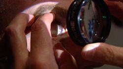 Greffes de cornée: pas de vision