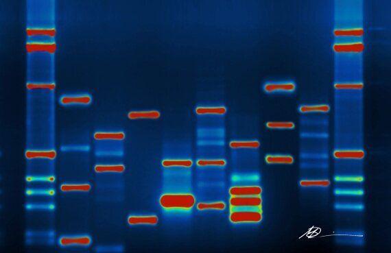 Séquencer l'ADN des donneurs de