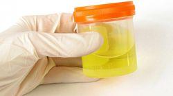 Comment votre urine va vous guérir