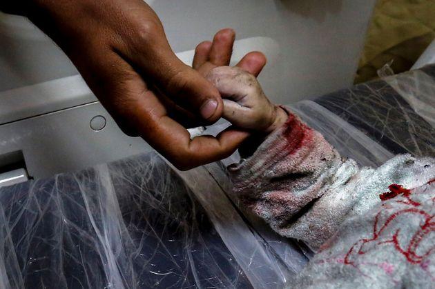 Un hombre sostiene la mano de Maria al-Gazali, una niña víctima de los bombardeos, en el...