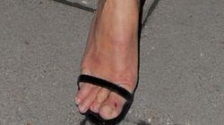 Kate Moss dévoile un orteil peu glorieux au dîner caritatif de l'Institut Marie