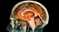 El cerebro puede resucitar sin el