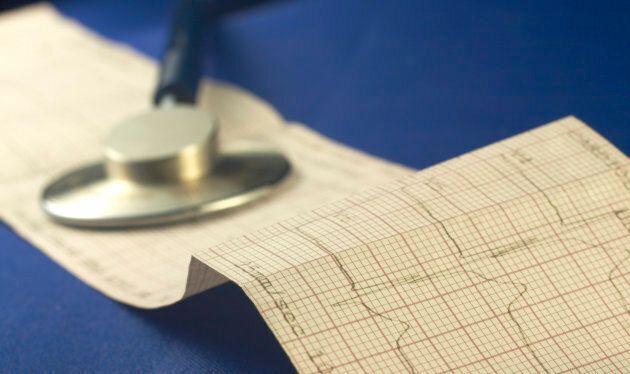 Davantage de recherche fondamentale est nécessaire — pour comprendre les différences des maladies cardiovasculaires...