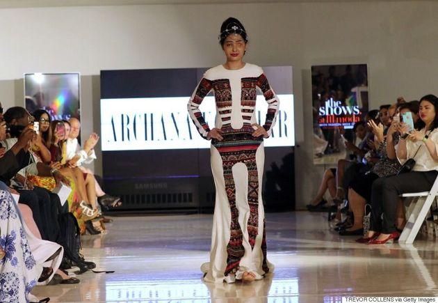 Défigurée à l'acide, elle défile pendant la semaine de la mode à New York