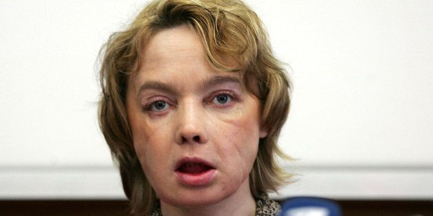 Isabelle Dinoire who received the world's first partial face transplant addresses a news conference at...