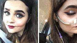 Cette Instagrammeuse atteinte d'une maladie génétique rare revit grâce au