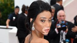 Festival de Cannes 2017: Winnie Harlow, mannequin atteinte de vitiligo, est magnifique sur le tapis