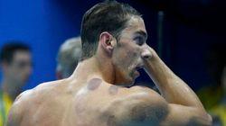 Pourquoi Michael Phelps a-t-il ces bleus étranges?