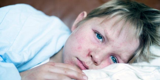 Very sick 5 year old little boy fighting measles infection, boy is laying in bed under the blanket with...