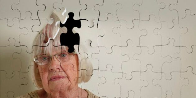 alzheimer's, memory loss and senile