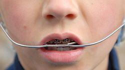 Redresser ses dents avec du fil à pêche est