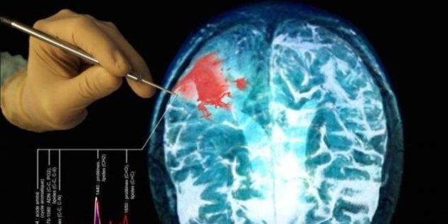Représentation du travail de la sonde détectant des cellules cancéreuses au