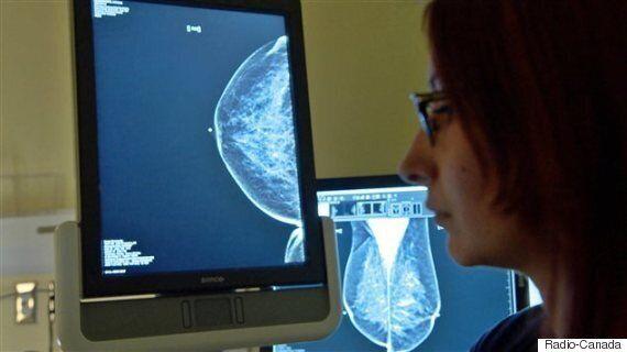 Délais pour une mammographie: le bonnet d'âne pour Rimouski et pour