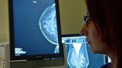 Délais pour une mammographie: le bonnet d'âne pour deux