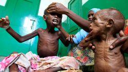 Des bébés souffrent de carences alimentaires dans le monde, constate