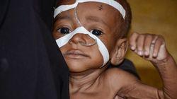 1,4 million d'enfants risquent de mourir de la famine en