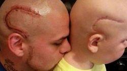 Ce papa se fait tatouer une cicatrice identique à celle de son