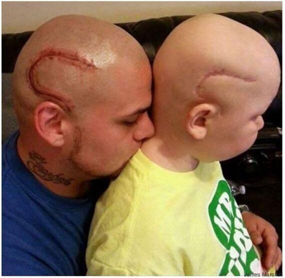 Ce papa se fait tatouer une cicatrice identique à celle de son fils, opéré au