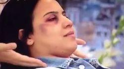 Polémique après la diffusion d'une démonstration de maquillage pour femmes battues dans ce
