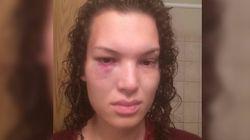 Cette Canadienne s'est fait frapper violemment pour avoir défendu une victime de harcèlement