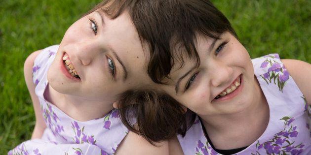 Le documentaire «Inseparable» présente la vie des jumelles siamoises Tatiana et Krista