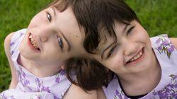 Le documentaire «Inseparable» présente la vie des jumelles siamoises