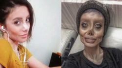 Elle subit 50 chirurgies pour ressembler à Angelina