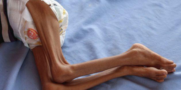Un enfant du Yémen souffrant de malnutrition photographié le 19 septembre