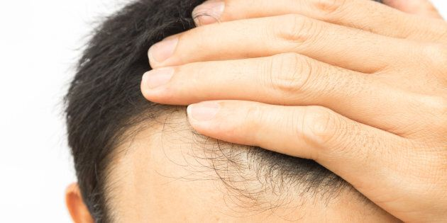 Une méthode pour dire adieu à la calvitie et aux pertes de cheveux aurait été